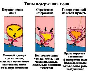 Воспаление мочевого пузыря и лечение в домашних условиях 367